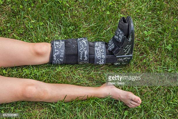 preteen girl with a broken leg - cast colors for broken bones stock pictures, royalty-free photos & images