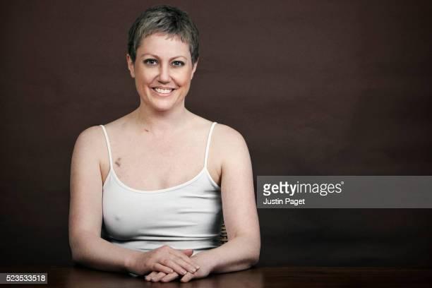 pretty breast cancer survivor with mastectomy - mastektomie stock-fotos und bilder
