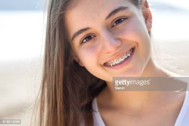 pretty teenage girl wearing braces smiling cheerfully - brace stock pictures, royalty-free photos & images