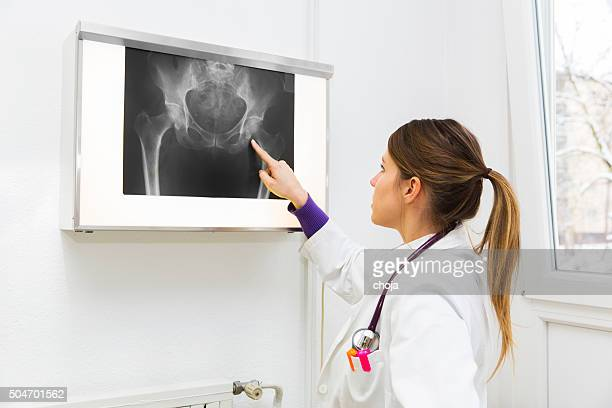 pretty young woman doctor watching x-ray image - human intestine stock photos and pictures