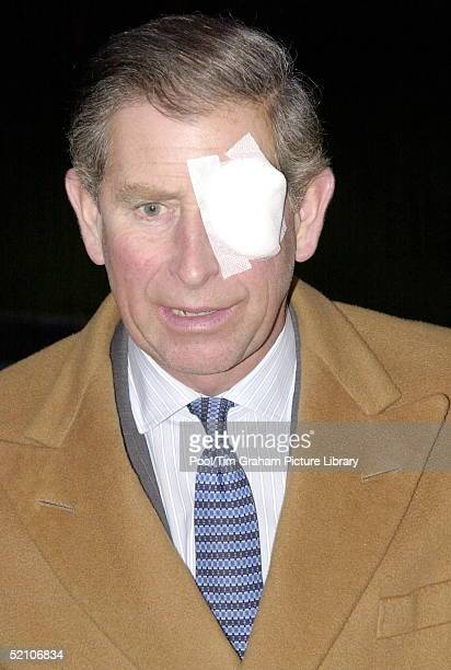 Prince Charles With An Eye Patch After An Accident While Gardening At His Home