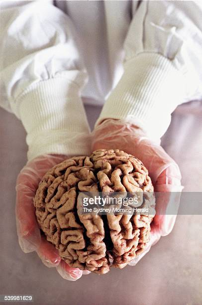 Prince of Wales Research Unit needs your brainDr Glenda Halliday the director of the unit is in need of brains for research after the owner has...