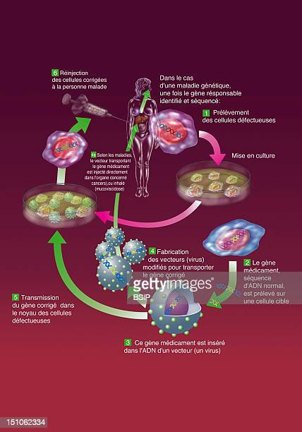 Principle Of Gene Therapies Ex Vivo And In Vivo Gene Therapy Ex Vivo Allies The Technics Of Gene Therapy And Stem Cell Therapy It Is A Sampling Of...