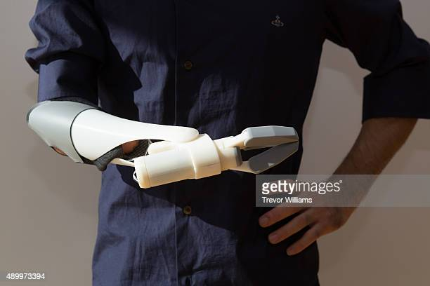 A 3D printed prostehetic arm was fitted to a potential user on September 21 2015 in Okayama Japan The prosthetic arm 'Finch' that can be massproduced...
