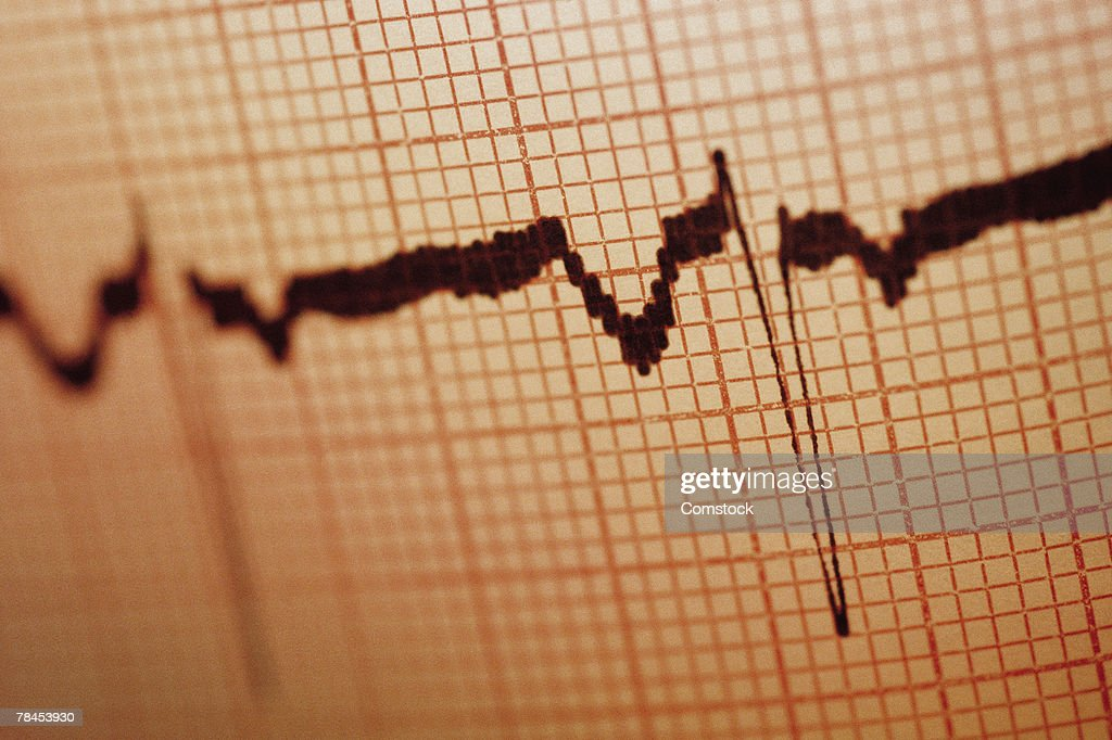 EKG printout with sine waves : Stockfoto