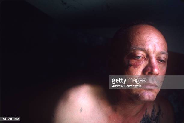 A prisoner with a black eye rests after being beaten for having a black boyfriend on May 1 1997 at the Stiles Unit in Beaumont Texas While...