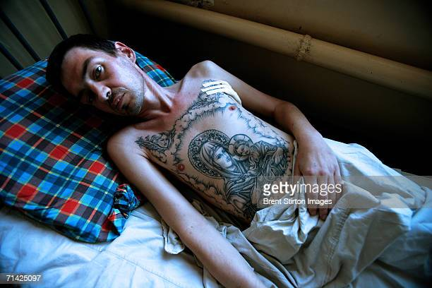 A prisoner with full blown Aids lies in an intensive care ward at Kherson Prison Hospital for prisoners with HIV/Aids on August 18 2005 in Kherson...