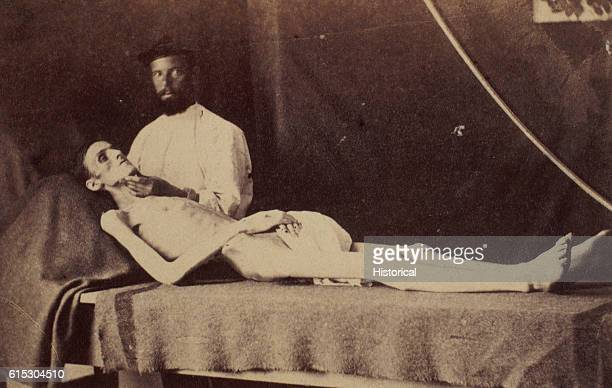 Private John Rose a starved Union prisoner of war exhibits his condition after his release from a Confederate prison after the end of the American...