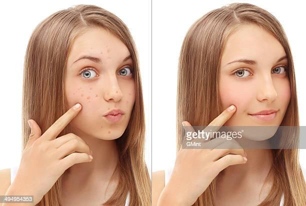 Problème de la peau, l'acné
