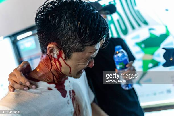 Pro-democracy supporters is injured after being beaten by police outside Tai Koo MTR station on October 3, 2019 in Hong Kong, China. On October 1,...