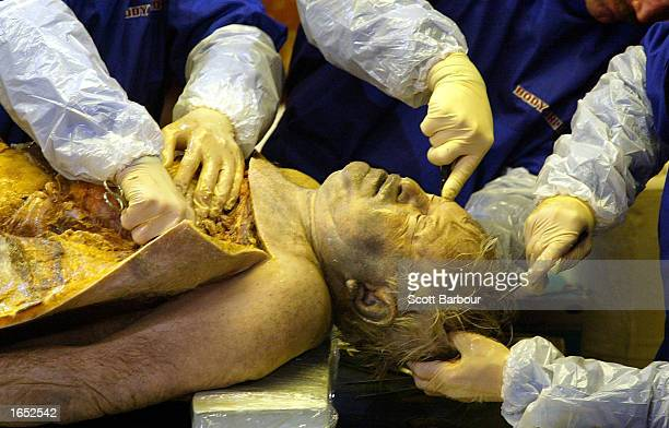 Professor Gunther Von Hagens performs an autopsy November 20 2002 in London England The first public dissection of a human body in over 170 years and...