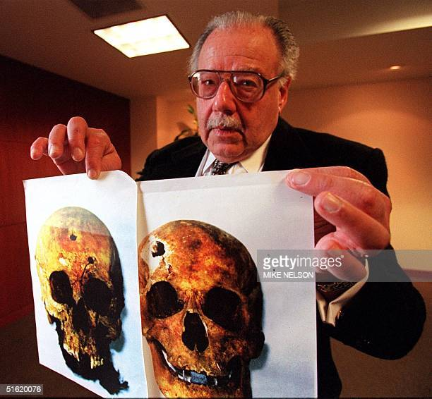 Professor Sheldon Harris from California State University at Northridge and author of the book Factories of Death shows photos 04 March of skulls of...