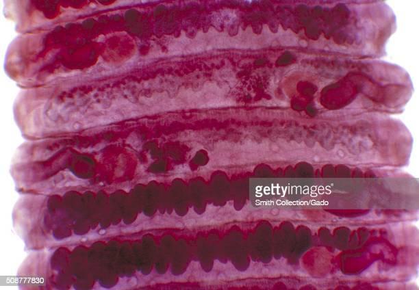 Proglottids of human tapeworm Bertiella studeri Parasite Image courtesy CDC/Dr George R Healy 1962