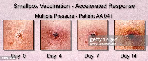 Progression of the appearance of a Smallpox vaccination site exhibiting an accelerated response over two weeks 1964 Image courtesy CDC/Dr John D...