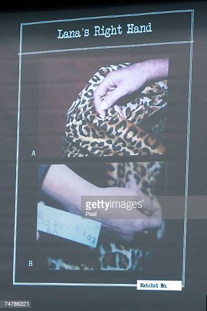 Projected crime scene evidence photos are displayed of Lana Clarkson's right hand during the murder trial of music producer Phil Spector at the Los...