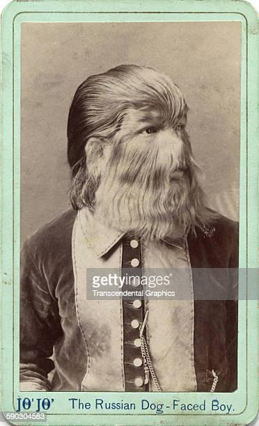 Promotional cartedevisite of circus performer JoJo the Dogfaced boy circa 1870