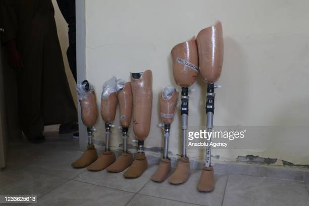 Prosthesis legs are seen at a physiotherapy and rehabilitation in Tal Abyad district which was cleared from PKK, listed as a terrorist organization...