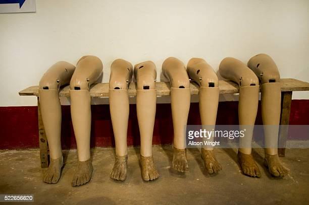 Prosthetic legs at the Landmine Museum