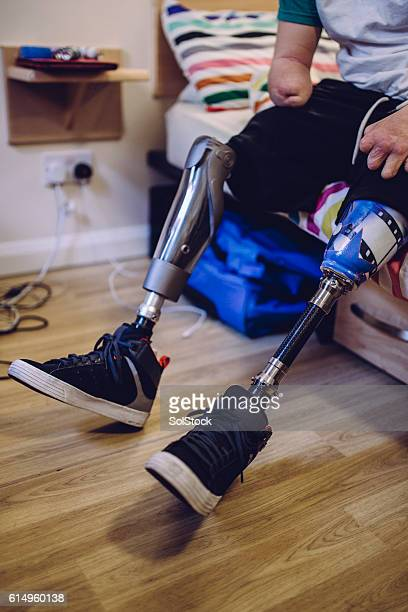 prosthetic legs - quadriplegic fotografías e imágenes de stock