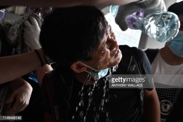 Protester has water poured on his face after police fired tear gas during a rally against a controversial extradition law proposal in Hong Kong on...