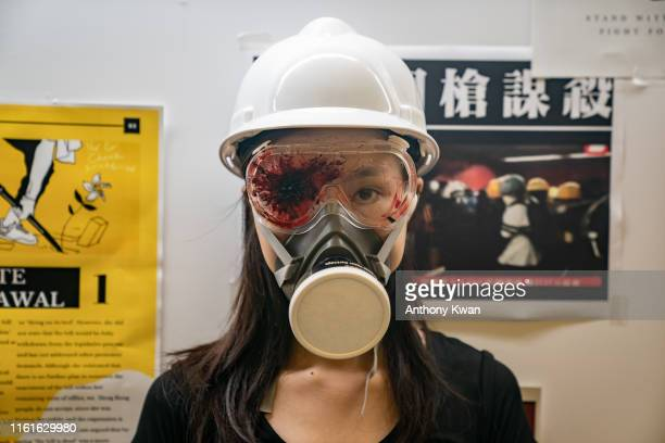 A protester wears a safety helmet and an eye patch in honor of another protester who was shot in the eye during a demonstration at the Hong Kong...