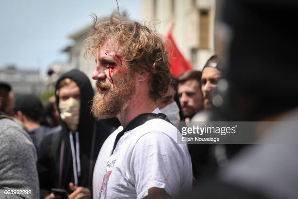 A protester's bloody face is seen following a scuffle with Trump supporters at a 'Patriots Day' free speech rally on April 15 2017 in Berkeley...