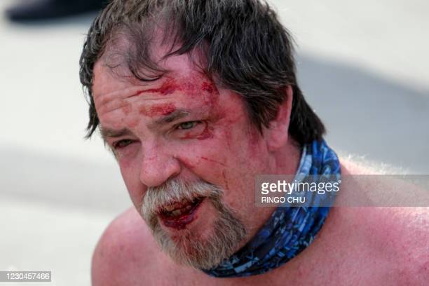 Protester's face is covered in blood after a fight during a protest to support President Donald Trump fight in Los Angeles, California, on January 6,...