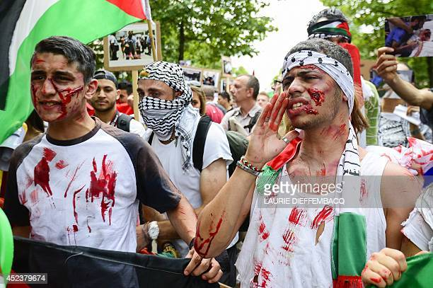 Protesters sport fake injuries during a demonstration in Brussels on July 19 to protest Israel's military campaign in Gaza and show their support to...