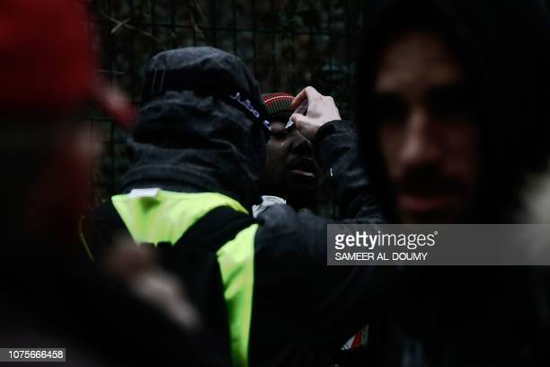 Protestor receives a eye treatment during a demonstration called by the yellow vests movement, to protest against the rising costs of living they...