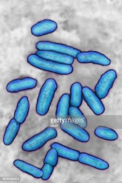 Pseudomonas Pseudomonas aeruginosa Highlyresistant pathogenic bacterium often the cause of hospitalacquired infections Seen under optical microscopy...