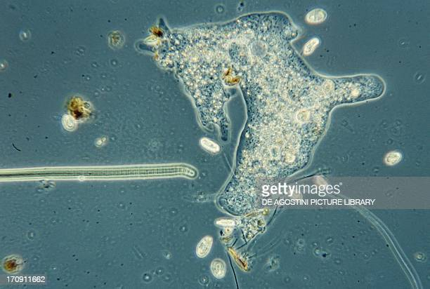 Pseudopodia formation of Amoeba Protozoan seen under a microscope