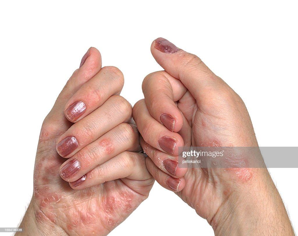 Psoriasis Hand : Stock Photo