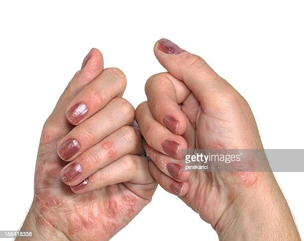 psoriasis hand - eczema stock pictures, royalty-free photos & images