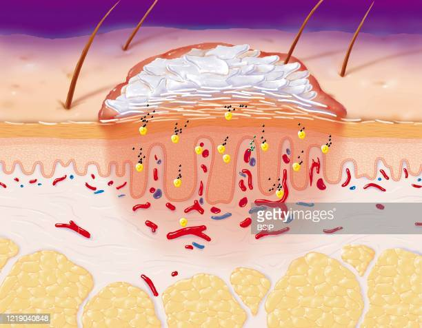 Psoriasis in section, skin with detailed epidermis in stratum corneum, granular and germinative, dermis, and hypodermis. In the center, a psoriasis...