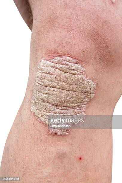 psoriasis on a mid age man's knee