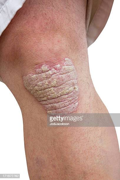 psoriasis on a mid age mans knee