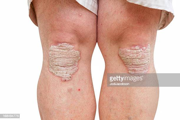 psoriasis on a mid age mans knees