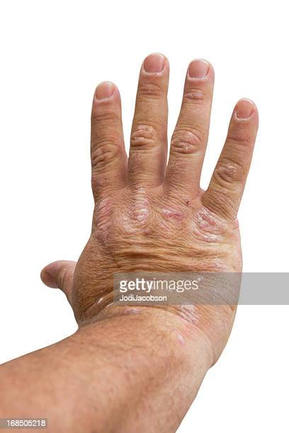 psoriasis on a mid age man's right hand