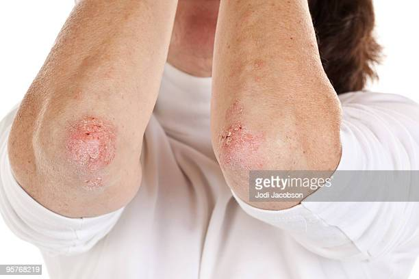 Psoriasis on female elbows