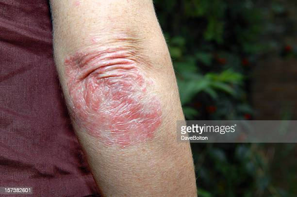 psoriasis - eczema stock pictures, royalty-free photos & images