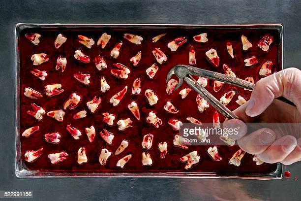 pulled teeth - dentist horror stockfoto's en -beelden