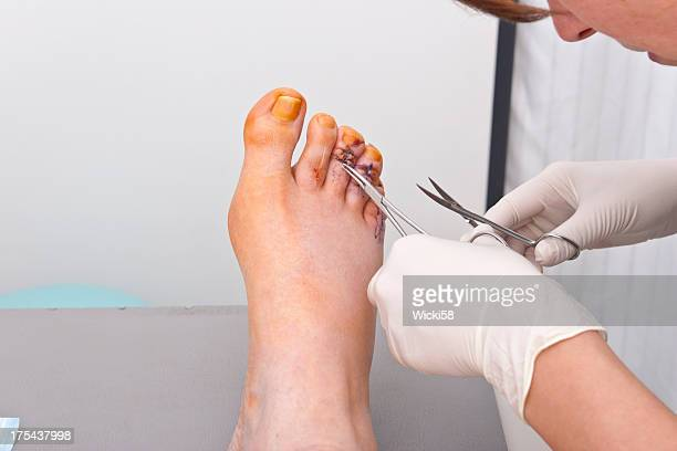 pulling the threads - medical stitches stock photos and pictures