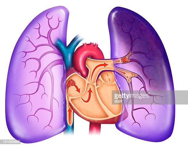 Pulmonary Embolism A Blood Clot Arrives At The Heart And Is Sent With The Blood Flow Towards The Lungs Being Too Big To Circulate Into The Blood...
