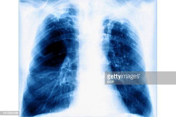 Pulmonary Emphysema Is Characterized By Pulmonary Alveola That Are Unable To Completely Deflate Hyperinflation The Rupture Of Interalveolar Septa And...
