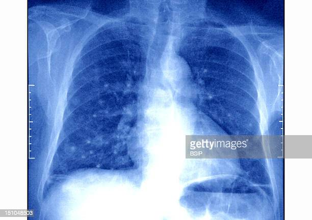 Pulmonary Metastases Secondary Cancer Carcinoma Thoracic X Ray In Front View