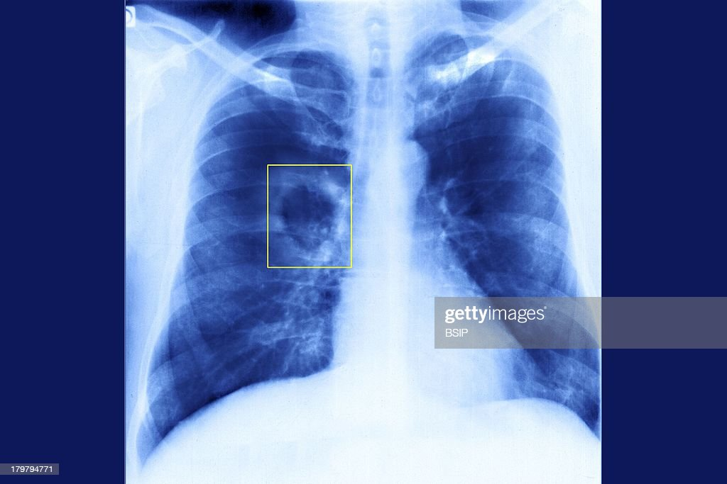 Pulmonary Tuberculosis, X-Ray Pictures | Getty Images
