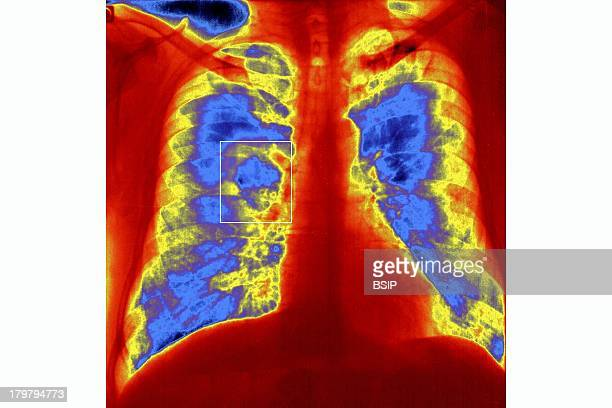 Pulmonary Tuberculosis XRay Pulmonary Tuberculosis After Primary Infection Lungs Reinfected By Microorganism Known As Kochs Bacillus Right Cavity...