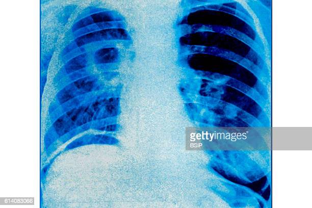 Pulmonary tubercuolsis seen on a frontal thoracic xray