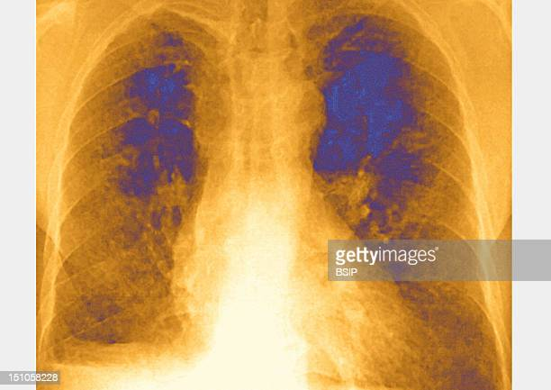 Pulmonary X Ray In Front View Of A Patient Suffering From Mucoviscidosis