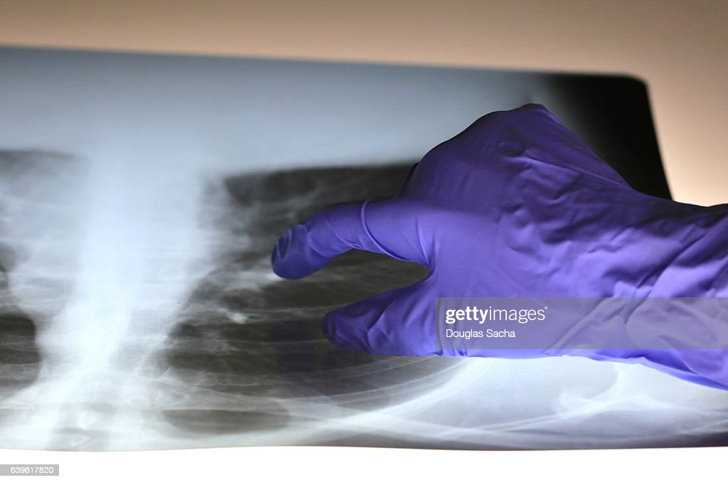 Pulmonologist doctor examines x-ray image of a patient's lungs and respiratory tract : Stock Photo